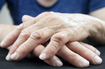 ARTRITE REUMATOIDE – Sintomas, causas e tratamento
