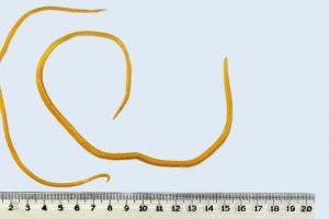 Ascaridíase – doença parasitária pelo Ascaris lumbricoides