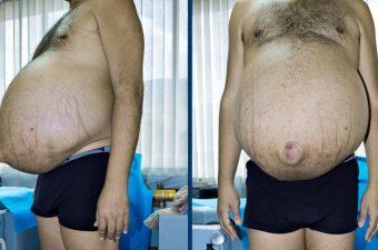 ASCITE (barriga d'água) – Causas, sintomas e tratamento