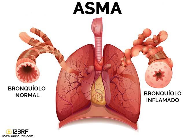 Pulmão com asma
