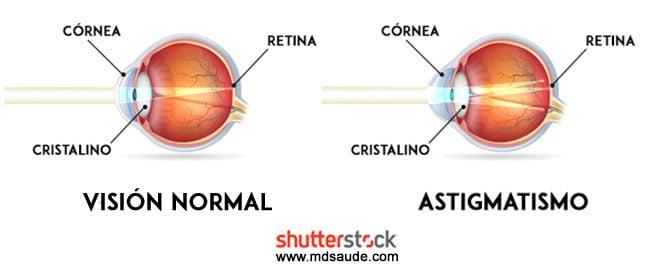 bd59c6acdf174 Cuando el astigmatismo es provocado por cambios en la curvatura de la  córnea, llamamos astigmatismo corneal  cuando el defecto es del cristalino,  ...
