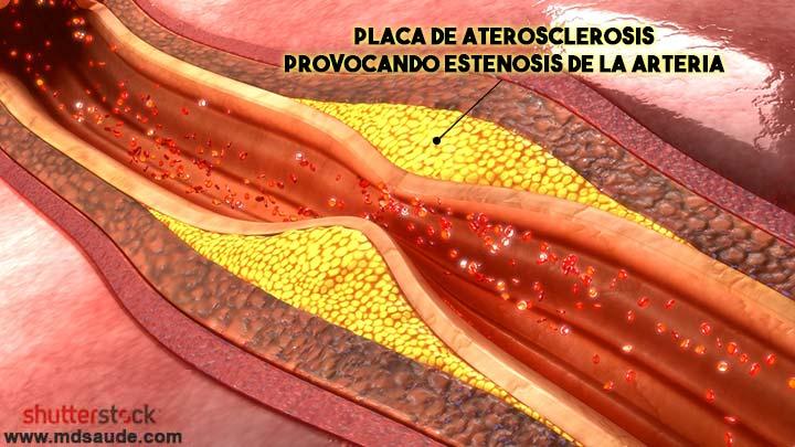 Enfermedad ateromatosa de la carótida - placa de aterosclerosis