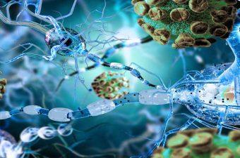 ENFERMEDADES AUTOINMUNES – Causas, síntomas y tratamiento