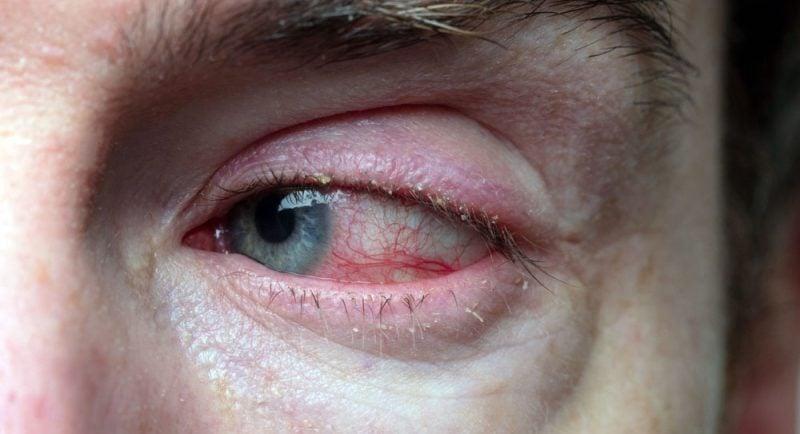 """Blefarite - Olhos vermelhos, pálpebras inchadas e """"caspa"""" nos cílios"""