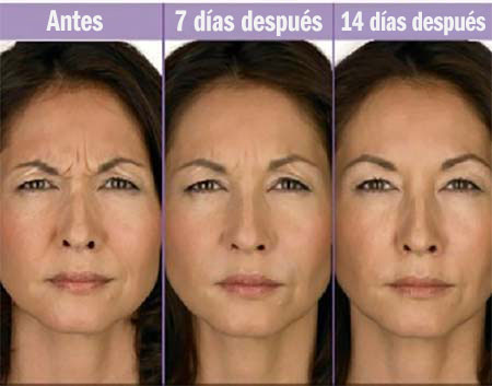 botox antes y despues