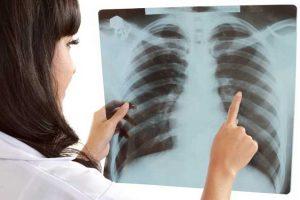 Cigarro e outros fatores de risco do câncer de pulmão