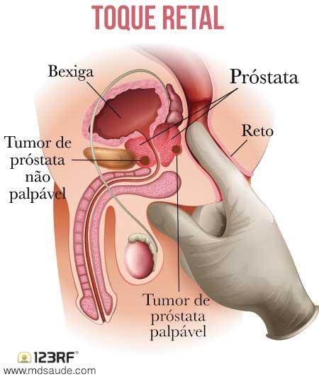 Toque retal - câncer de próstata