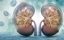 Câncer de rim – Carcinoma de células renais claras