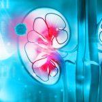 CÂNCER DE RIM – Causas, Sintomas e Tratamento