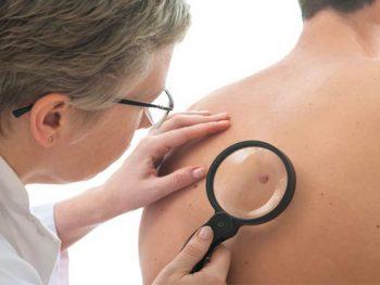 CARCINOMA BASOCELULAR – Causas, Sintomas e Tratamento
