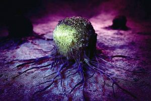 O que é um carcinoma?