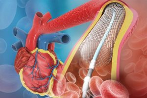 CATETERISMO CARDÍACO – Angioplastia con Stent