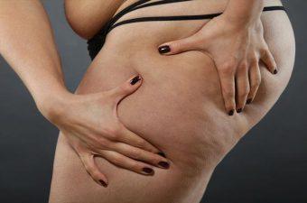 CELULITE – Causas, fatores de risco e tratamento