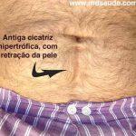 Tratamento do Queloide e da Cicatriz Hipertrófica