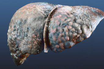 CIRROSIS HEPÁTICA – Síntomas, causas y tratamiento