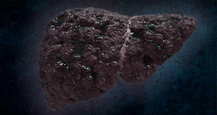 Cancer en el higado sintomas finales