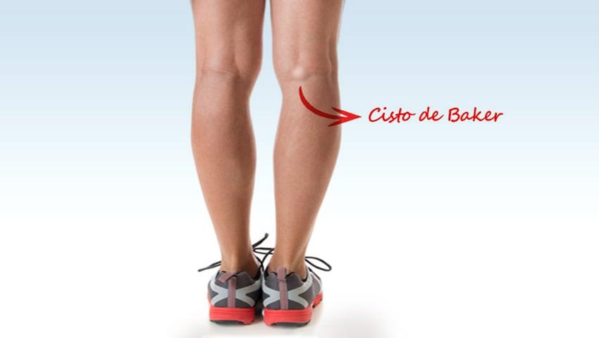 dor no joelho e causa inchaço na perna