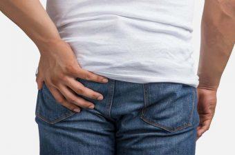 QUISTE PILONIDAL – Causas, Síntomas y Cirugía