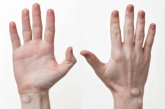 CISTO SINOVIAL – Causas, sintomas e tratamento
