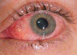 Conjuntivitis alérgica