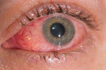 CONJUNTIVITE ALÉRGICA – Causas, sintomas e tratamento