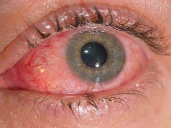 CONJUNTIVITIS ALÉRGICA – Causas, Síntomas y Tratamiento