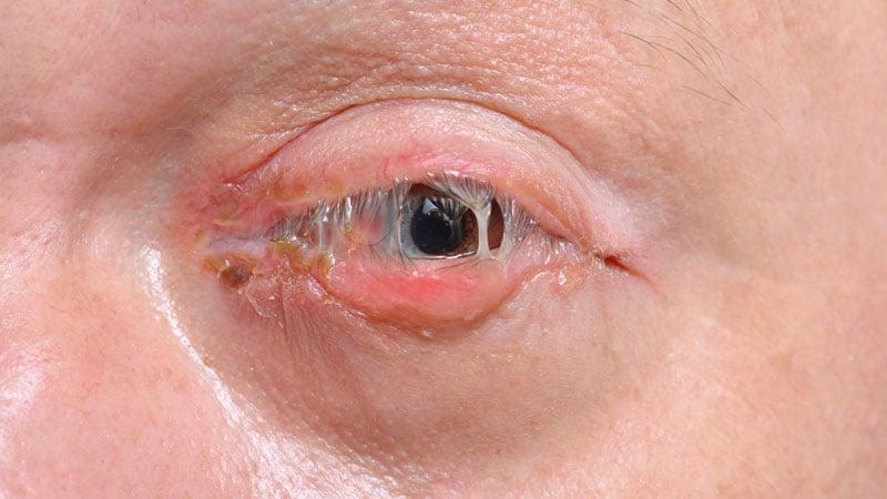 Conjuntivite bacteriana - Olhos inchados, vermelhos e com secreção purulenta