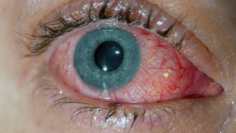 Conjuntivite viral - Olho inchado, vermelho e com lacrimejamento