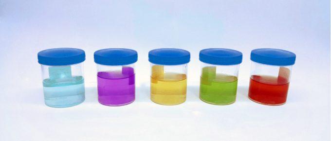 Urina colorida