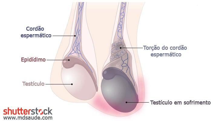 Como ocorre a torção testicular - ilustração