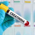CREATININA Y UREA