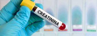 EXAME DA CREATININA E UREIA