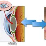 CATARATA – O que é, Sintomas e Tratamento