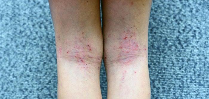 Dermatite atópica em área de dobra da pele