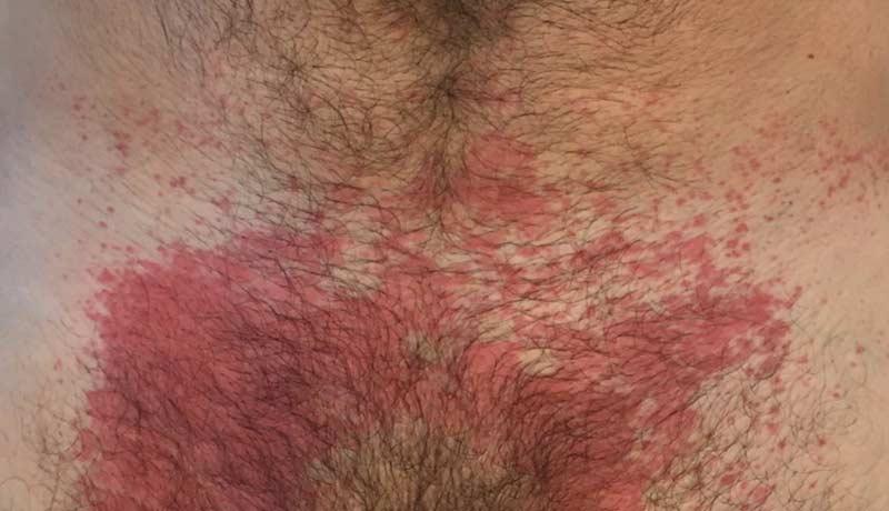 Dermatite de contato