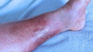 Dermatite de estase