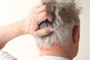 DERMATITIS SEBORREICA – Síntomas y Tratamiento