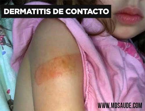 Dermatitis de contacto alérgica provocada por una tirita.
