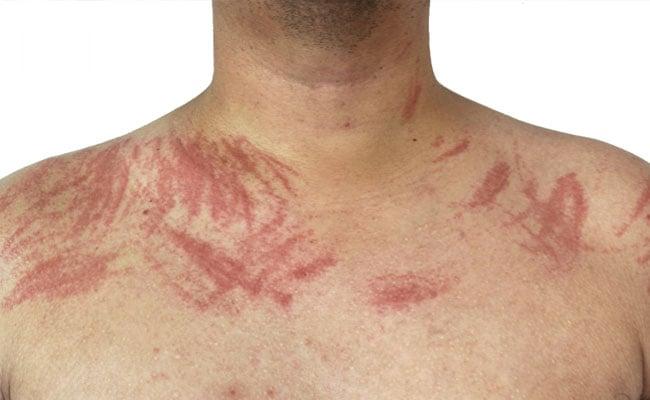 Dermatografia
