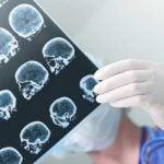 AVC – Acidente Vascular Cerebral – Causas e Sintomas