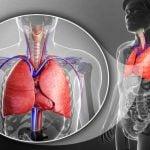 DERRAME PLEURAL – Síntomas, Causas y Tratamiento