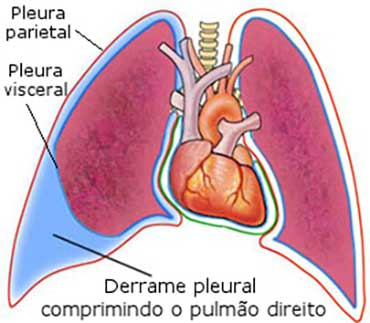 derrame-pleural
