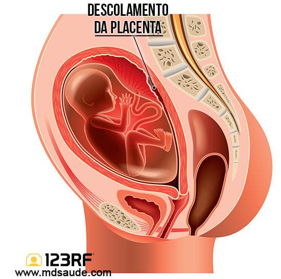 Descolamento da placenta