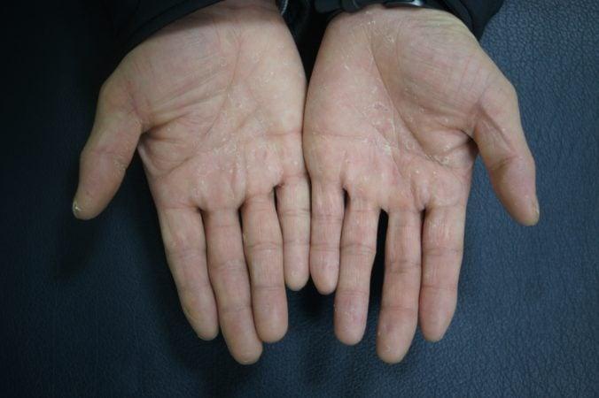 Descamação das mãos por eczema disidrótico