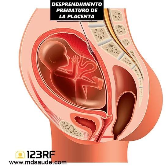 Desprendimiento de utero embarazo