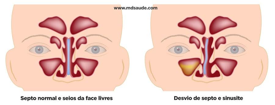 Desvio de Septo: causas, sintomas e tratamento 2
