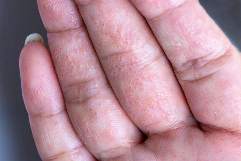 disidrose na palma da mão