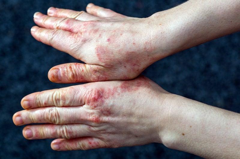dermatite crônica nas mãos por eczema disidrótico.