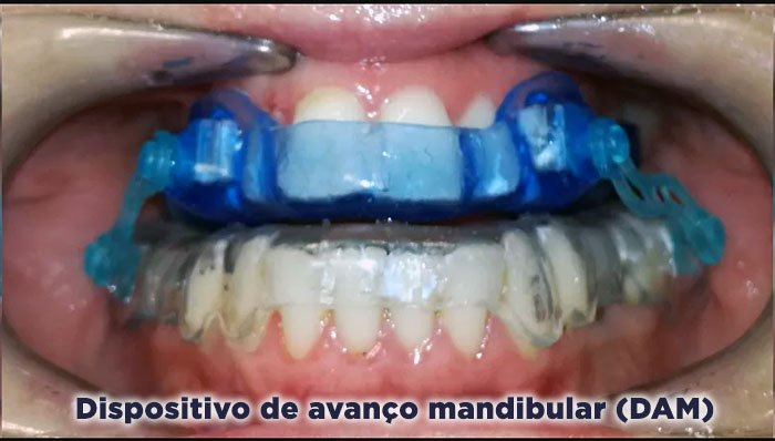 Dispositivo de avanço mandibular (DAM)