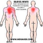 Síntomas del Infarto agudo de miocardio y angina